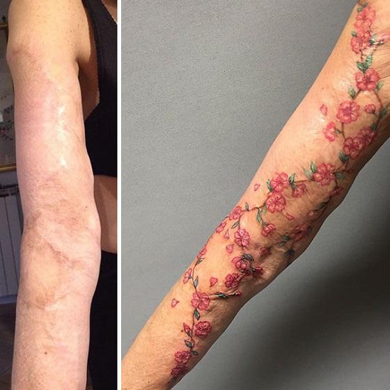 Cicatrizes Transformadas Em Fantásticas Tatuagens (18)