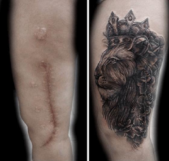 Cicatrizes Transformadas Em Fantásticas Tatuagens8